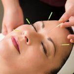 Best Fertility Acupuncturists on the Sunshine Coast