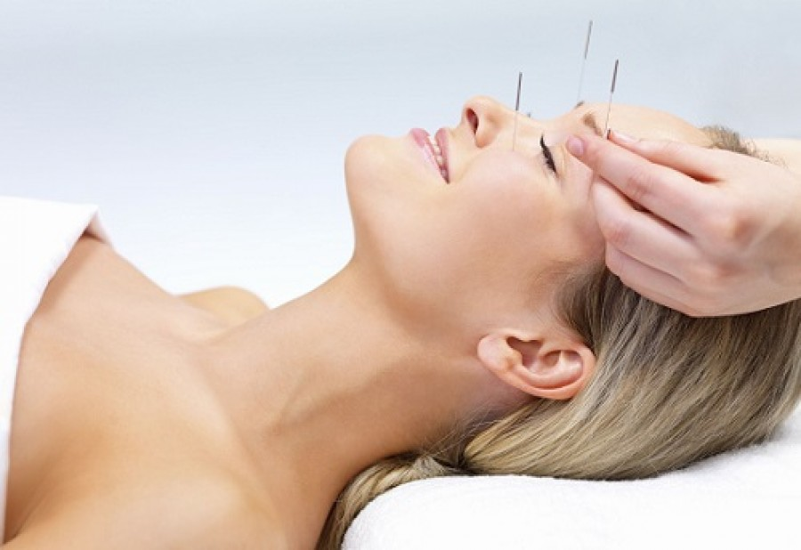 Top 5 Fertility Acupuncturists in Canberra 2019