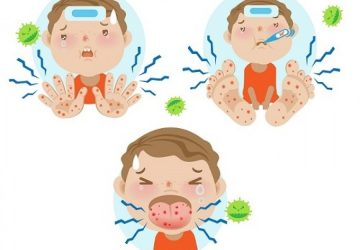 Understanding Hand, Foot and Mouth Disease
