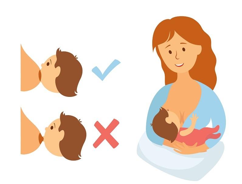 breast engorgement babyinfo breastfeeding position