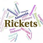 Rickets: Causes, Diagnosis and Management